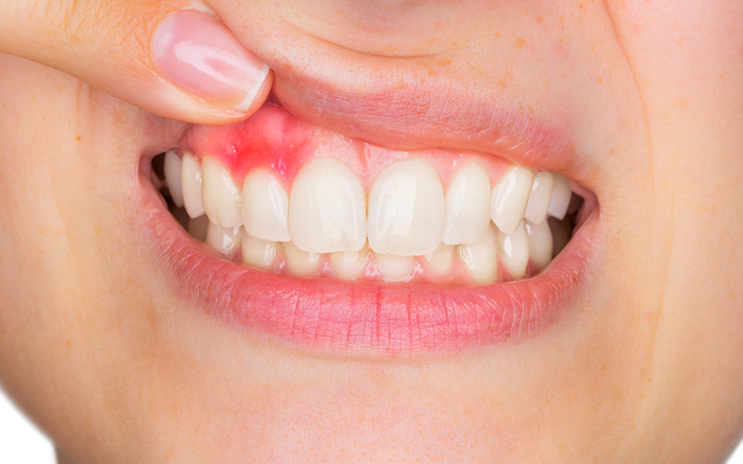 The Bleeding Truth About Gingivitis